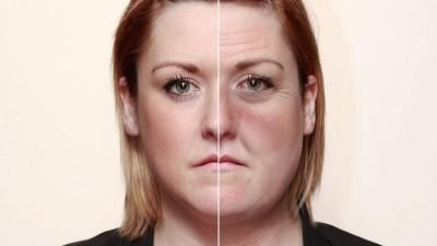 Znaci alkoholizma kod žena na licu fotografija