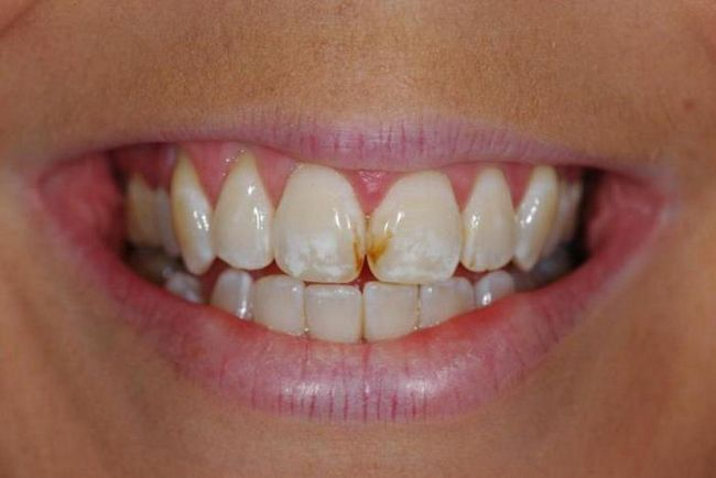 Болит зуб, болит голова одновременно: причины, чем лечить