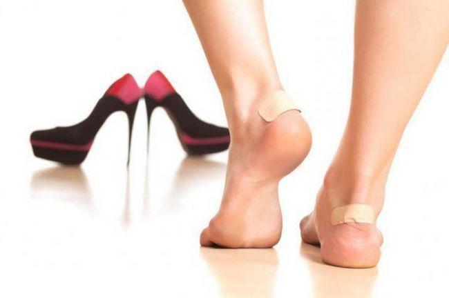 Что делать, если обувь натирает пятку? Советы по разнашиванию обуви