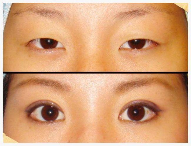 Двойное веко - мечта многих обладателей азиатской внешности!