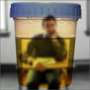 kako da prođe test urina,
