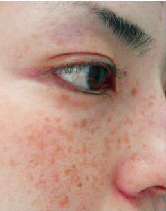 Как убрать коричневые пятна на лице. Пятна на лице коричневого цвета - причины