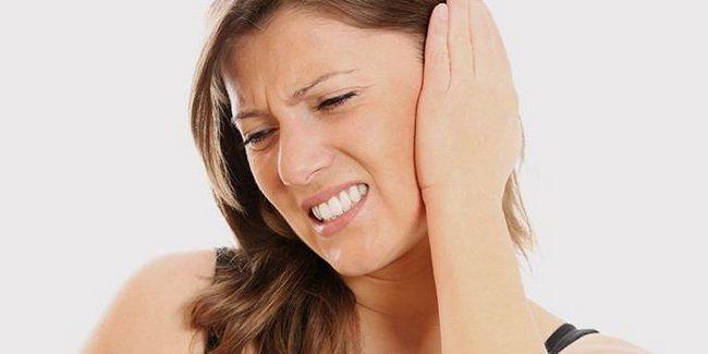Кохлеарный неврит слухового нерва: лечение