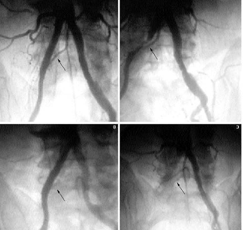 Лечение атеросклероза сосудов нижних конечностей и симптомы заболевания