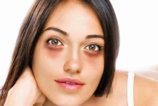 Мешки и синяки под глазами как убрать? Средства, советы, рекомендации