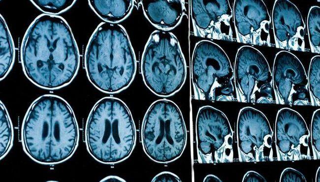 МРТ с контрастом: отзывы, подготовка. Как делают МРТ головного мозга с контрастом?