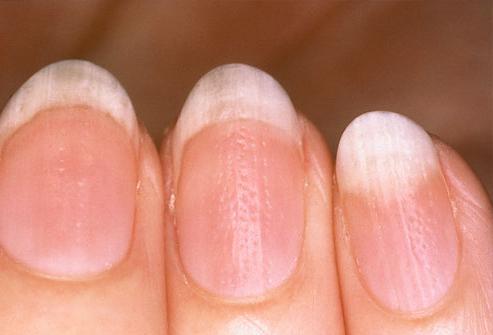 Неровные ногти на руках: причина, лечение