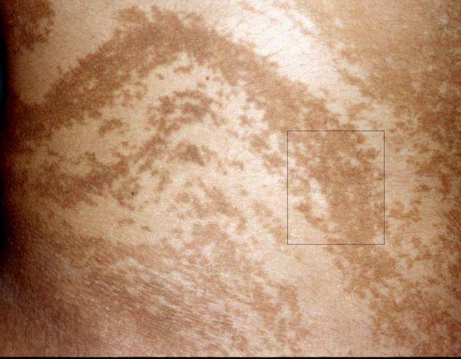 Nevidljivi i obično oko Blashko linija na ljudsko tijelo