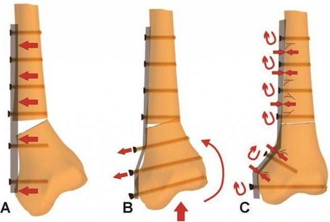 Остеосинтез - что это такое? Хирургическая репозиция костных отломков при помощи различных фиксирующих конструкций