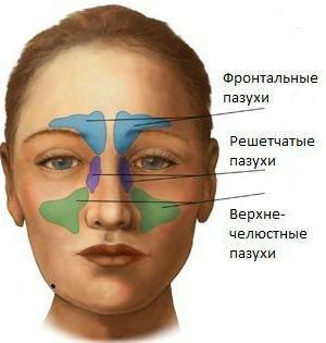 Острый гайморит: симптомы. Лечение острого гайморита