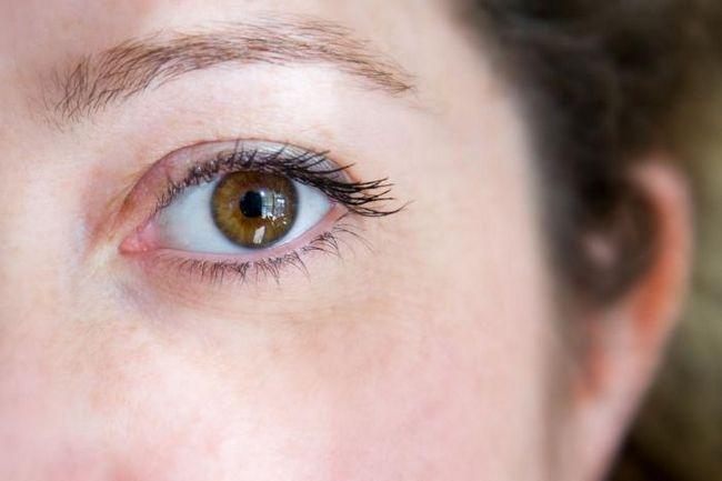 Hidrokortizon mast za oči