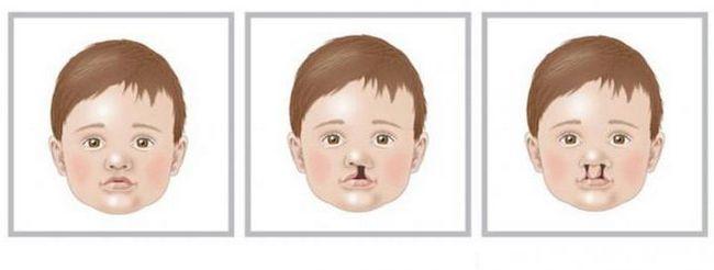Расщелина губы и нёба: причины и коррекция