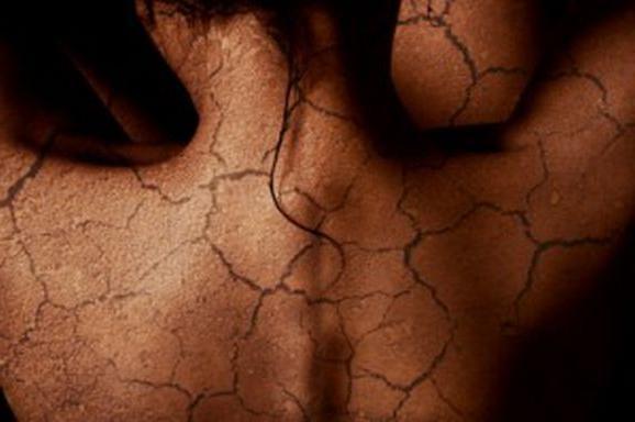 Шелушащаяся кожа: причины. Что делать, если кожа шелушится?