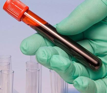 volumena crvenih krvnih zrnaca