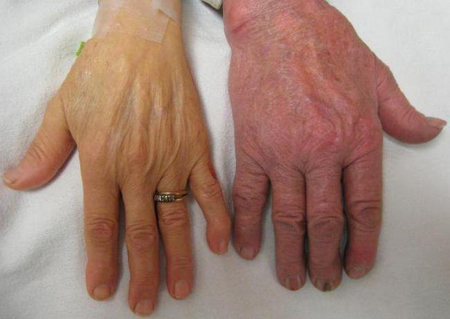 Тяжелая степень анемии: причины