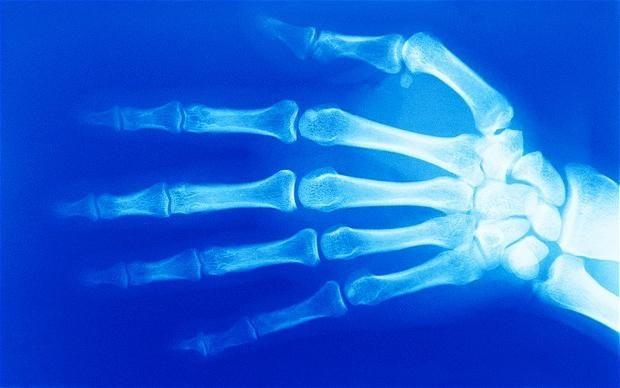 воспаление берцовой кости